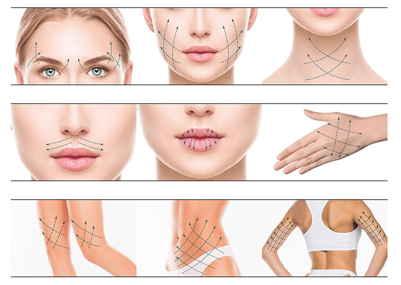 There Is a Great Demand for Non-surgical Aesthetics, Magik PDO Thread Lifts Are a New Way to Achieve Instant Skin Tightening (4)